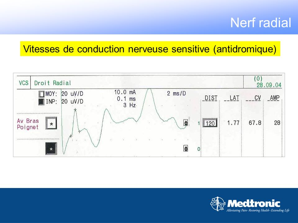 Nerf radial Vitesses de conduction nerveuse sensitive (antidromique)