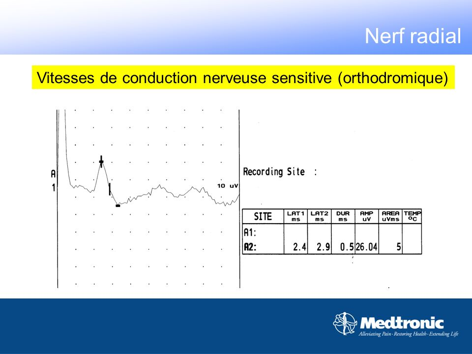 Nerf radial Vitesses de conduction nerveuse sensitive (orthodromique)