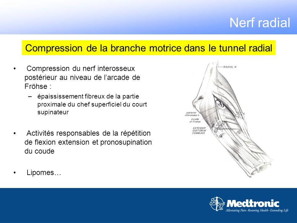 Compression de la branche motrice dans le tunnel radial