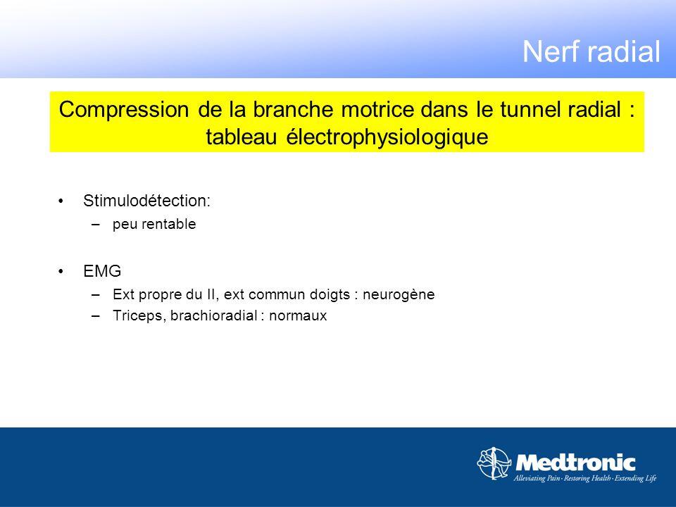 Nerf radialCompression de la branche motrice dans le tunnel radial : tableau électrophysiologique. Stimulodétection: