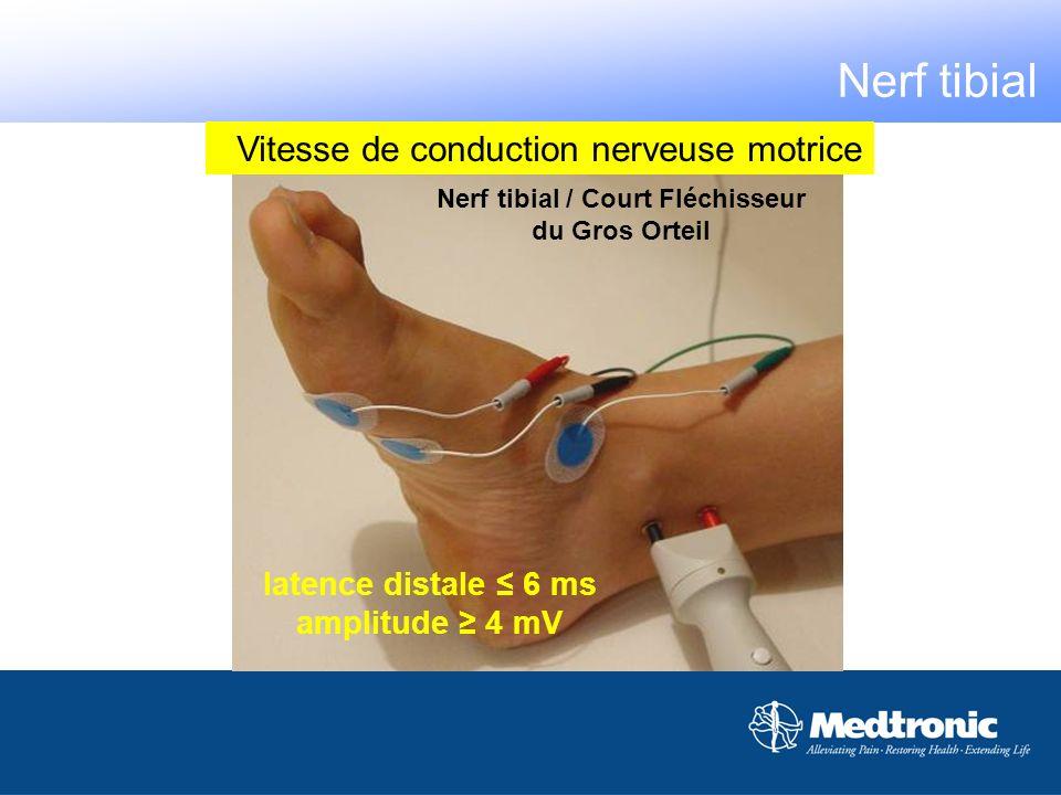 Nerf tibial / Court Fléchisseur du Gros Orteil