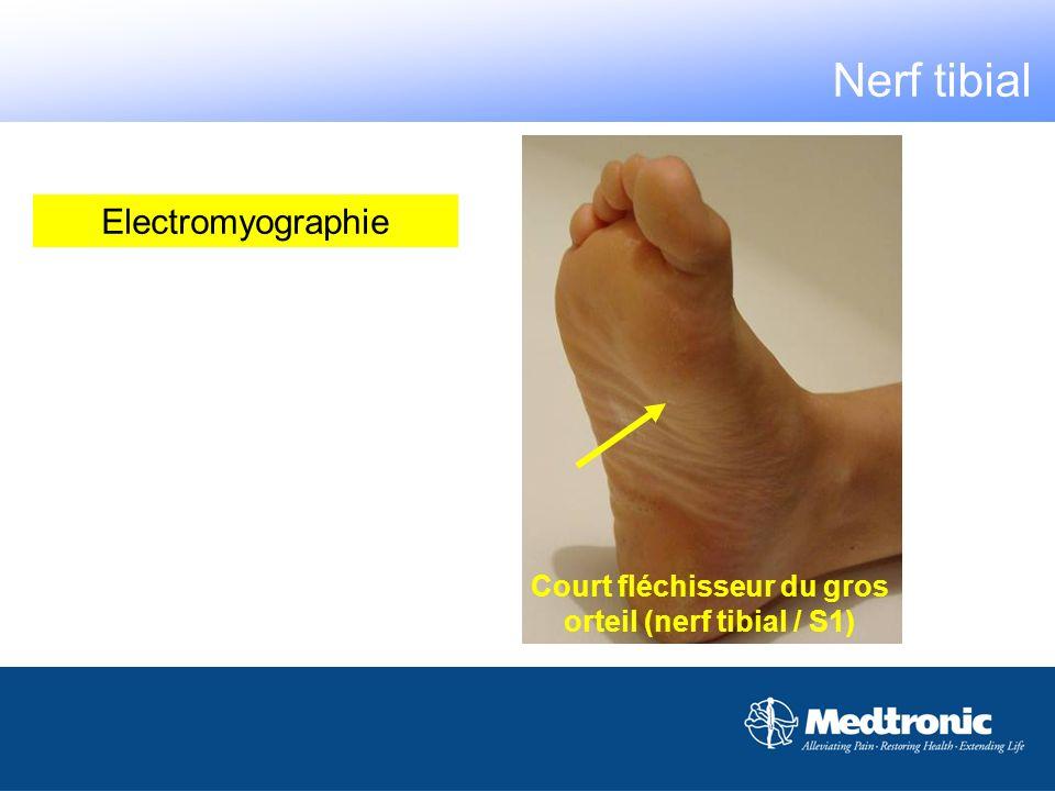Court fléchisseur du gros orteil (nerf tibial / S1)