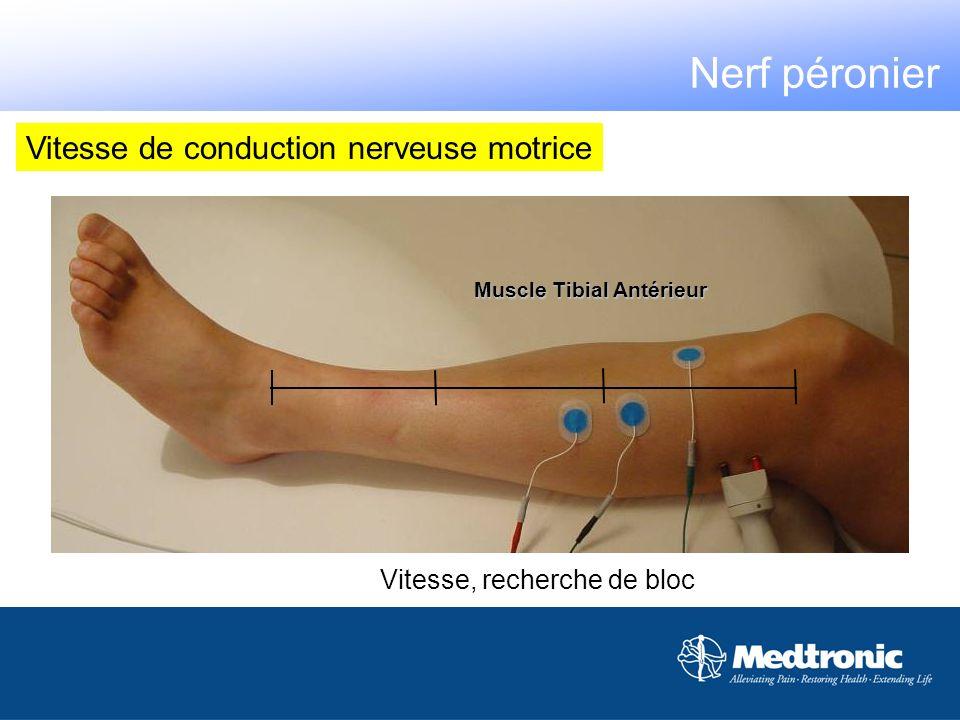 Muscle Tibial Antérieur