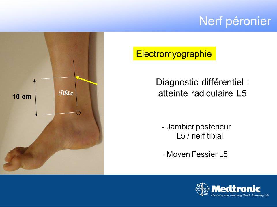 Nerf péronier Electromyographie Diagnostic différentiel :