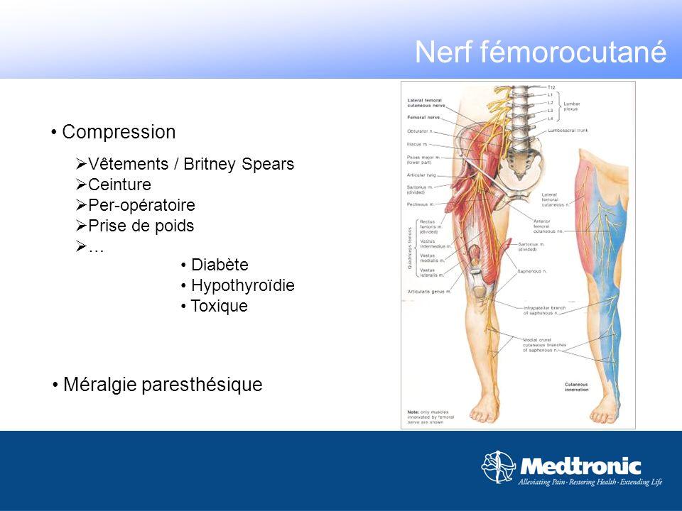 Nerf fémorocutané Compression Méralgie paresthésique