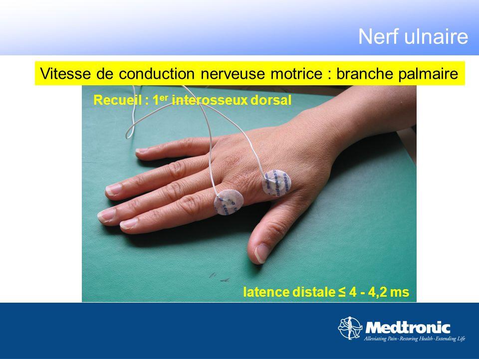 Nerf ulnaire Vitesse de conduction nerveuse motrice : branche palmaire