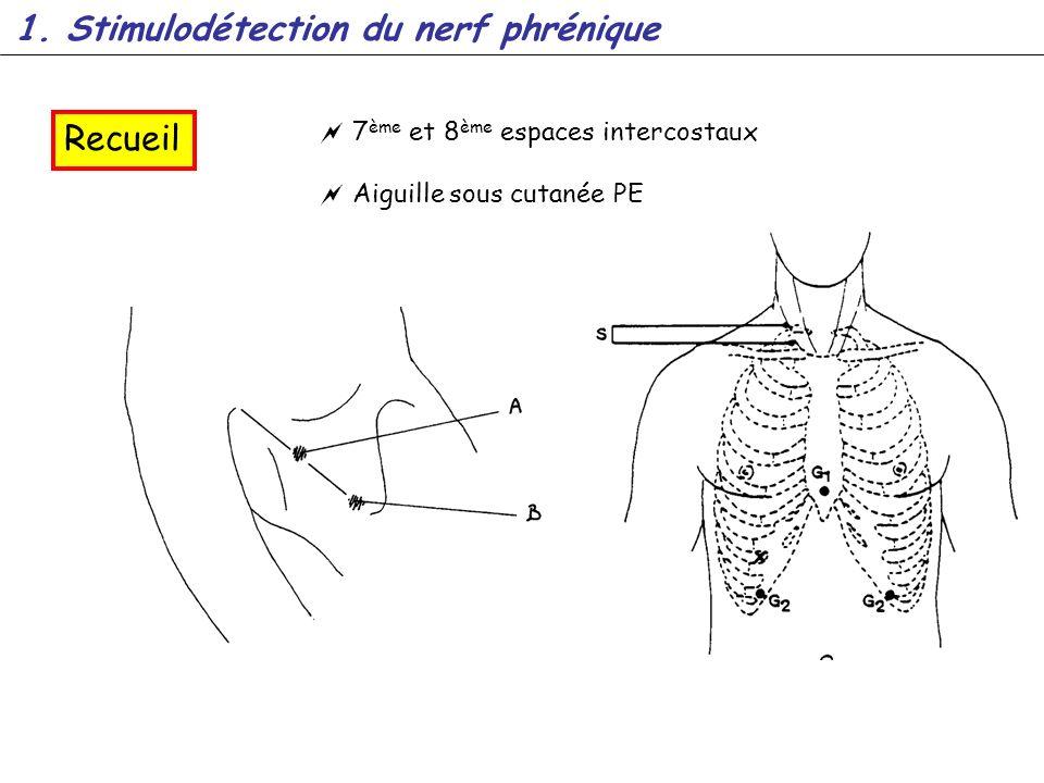 1. Stimulodétection du nerf phrénique