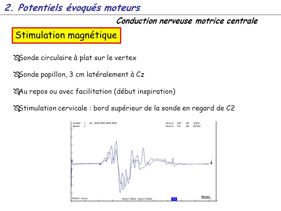 Conduction nerveuse motrice centrale