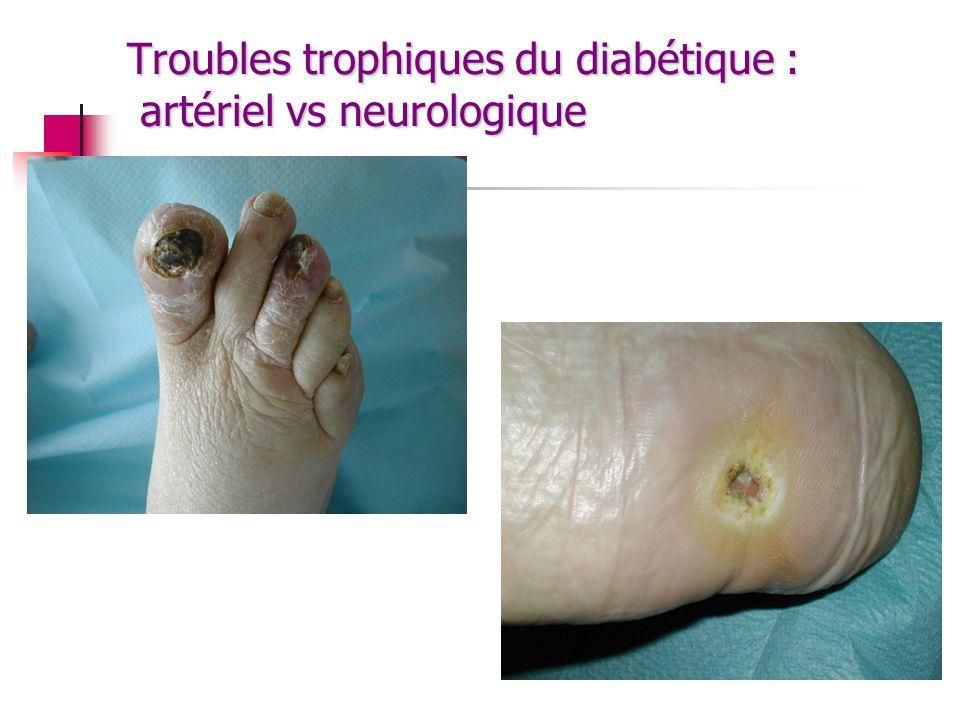 Troubles trophiques du diabétique : artériel vs neurologique