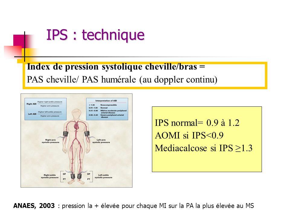 IPS : technique Index de pression systolique cheville/bras =