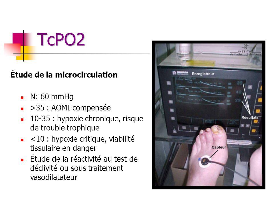 TcPO2 Étude de la microcirculation N: 60 mmHg >35 : AOMI compensée