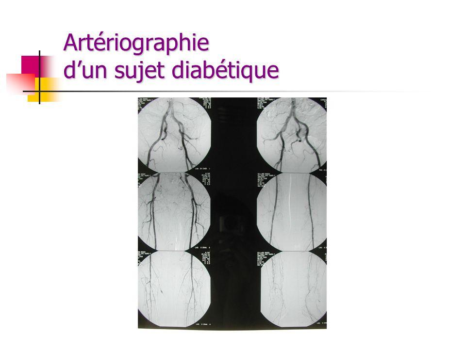 Artériographie d'un sujet diabétique