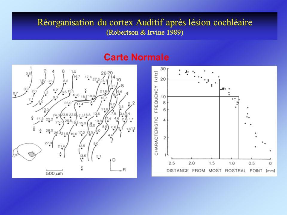 Réorganisation du cortex Auditif après lésion cochléaire (Robertson & Irvine 1989)