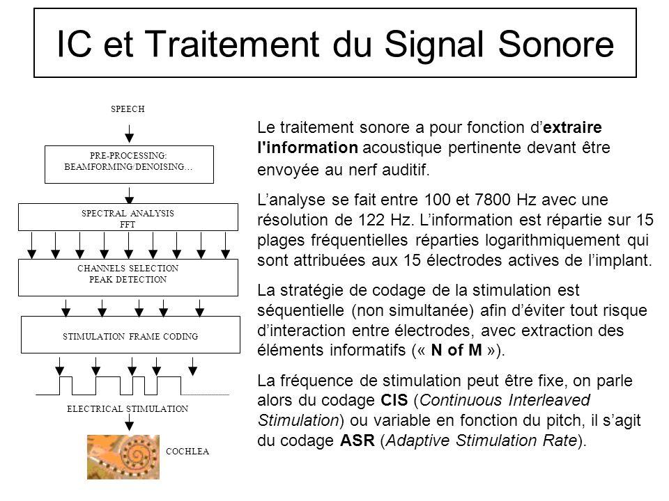 IC et Traitement du Signal Sonore