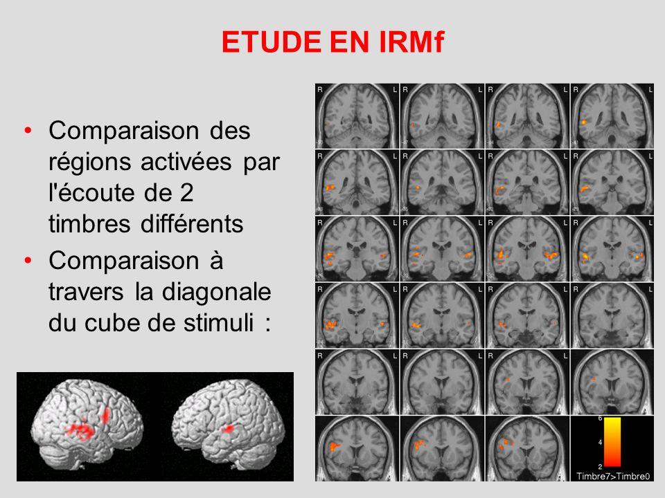 ETUDE EN IRMf Comparaison des régions activées par l écoute de 2 timbres différents.
