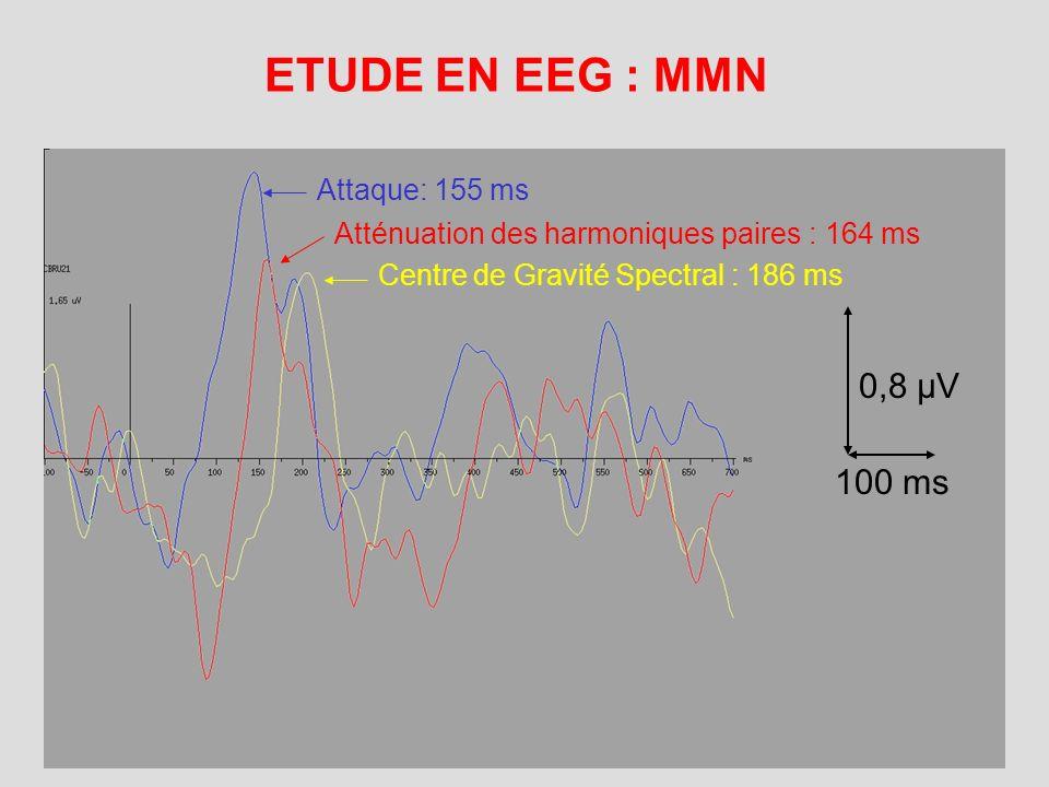 ETUDE EN EEG : MMN 0,8 µV 100 ms Attaque: 155 ms