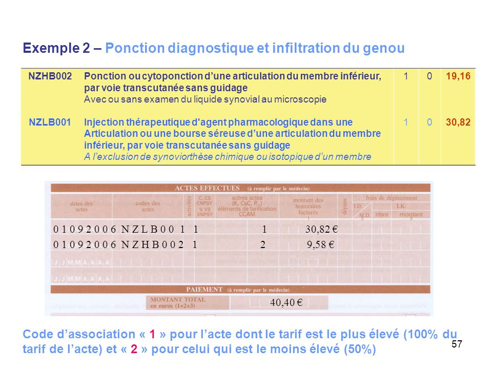 Exemple 2 – Ponction diagnostique et infiltration du genou