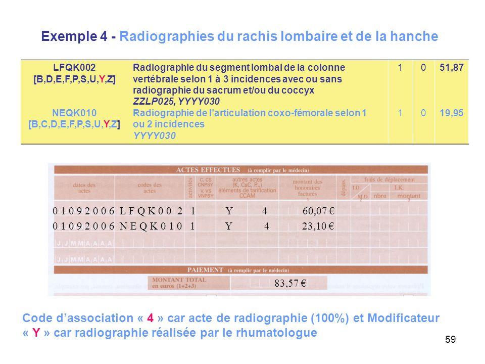 Exemple 4 - Radiographies du rachis lombaire et de la hanche