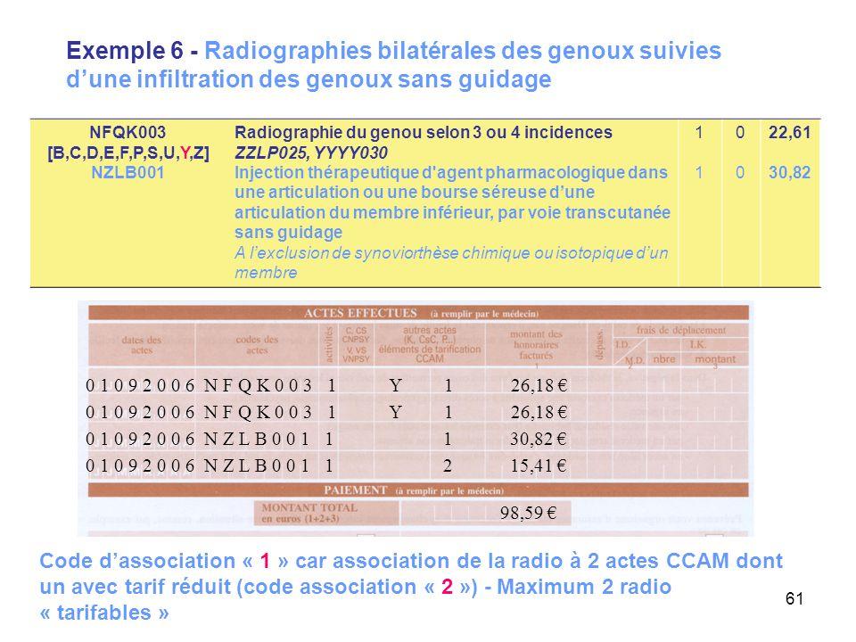 Exemple 6 - Radiographies bilatérales des genoux suivies d'une infiltration des genoux sans guidage