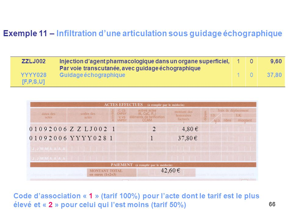 Exemple 11 – Infiltration d'une articulation sous guidage échographique
