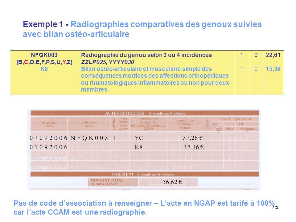 Exemple 1 - Radiographies comparatives des genoux suivies avec bilan ostéo-articulaire