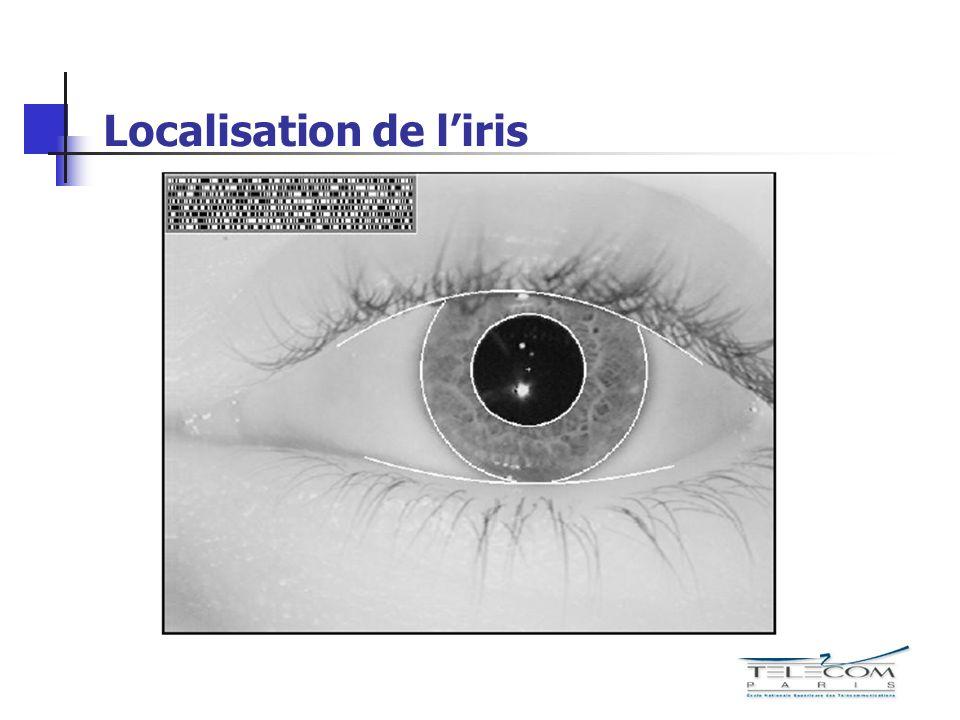 Localisation de l'iris