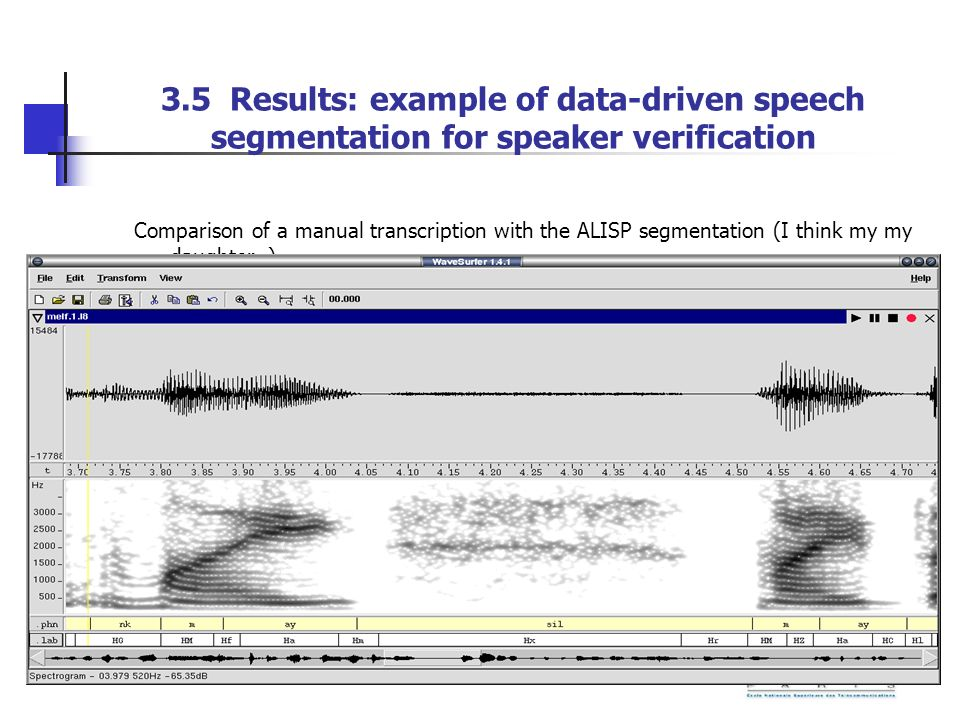 3.5 Results: example of data-driven speech segmentation for speaker verification