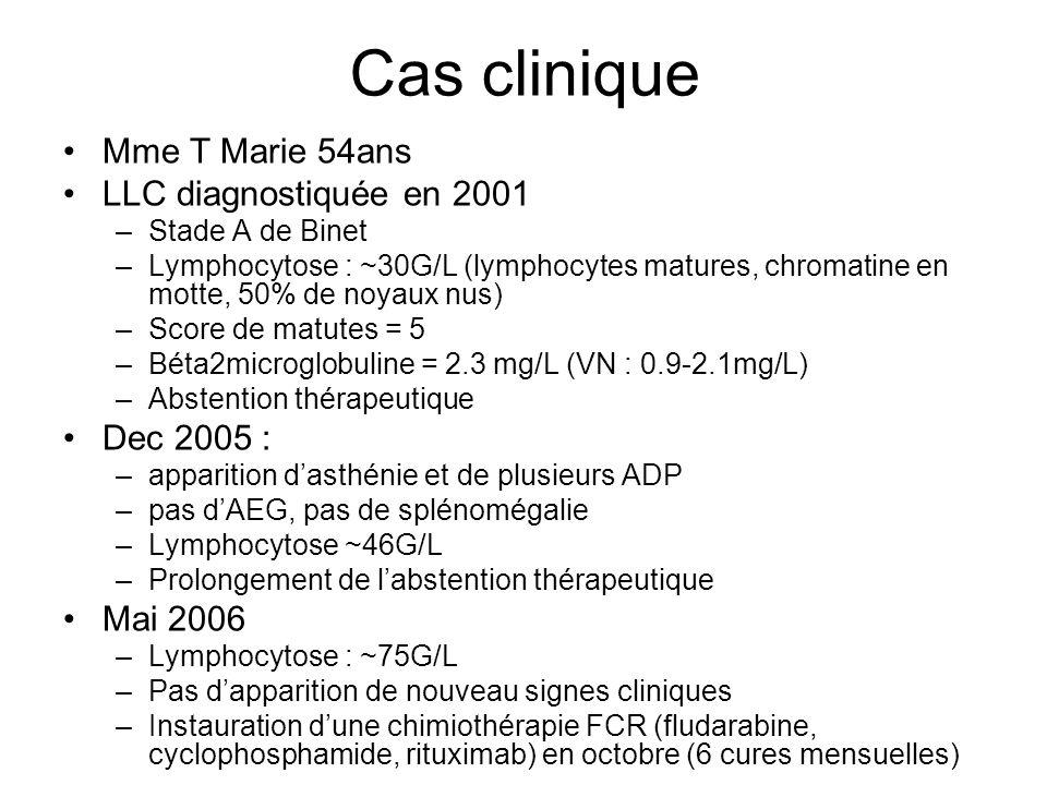 Cas clinique Mme T Marie 54ans LLC diagnostiquée en 2001 Dec 2005 :
