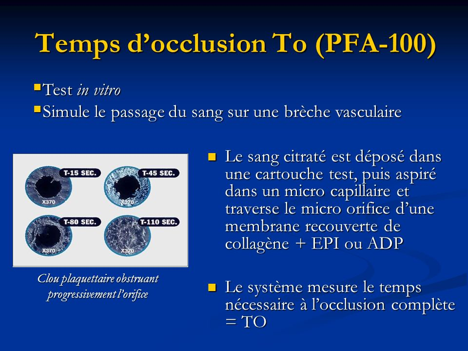 Temps d'occlusion To (PFA-100)