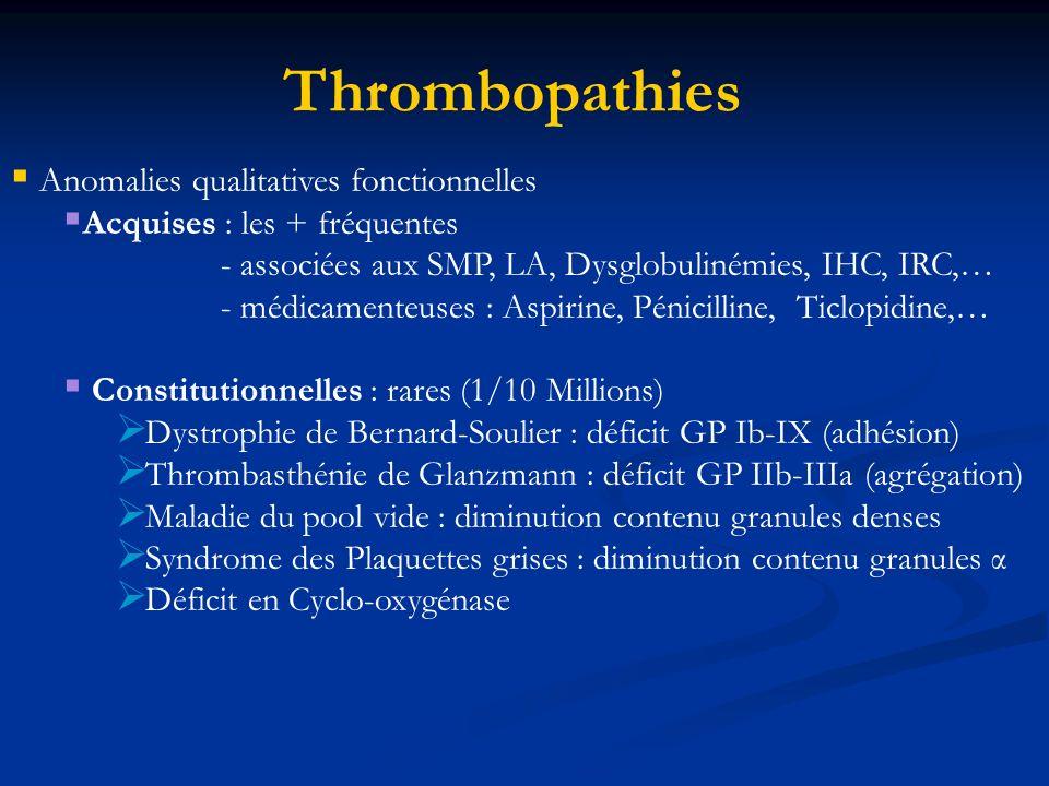Thrombopathies Anomalies qualitatives fonctionnelles