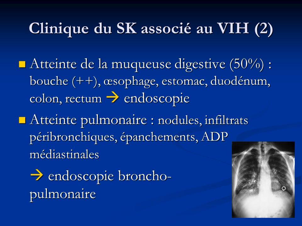 Clinique du SK associé au VIH (2)