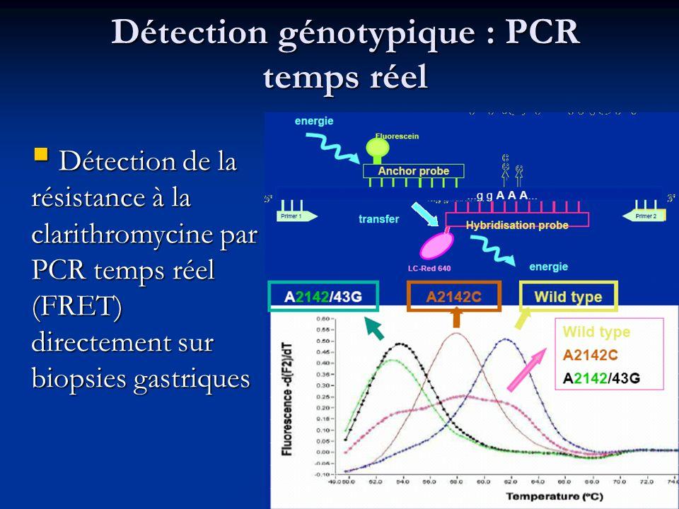 Détection génotypique : PCR temps réel