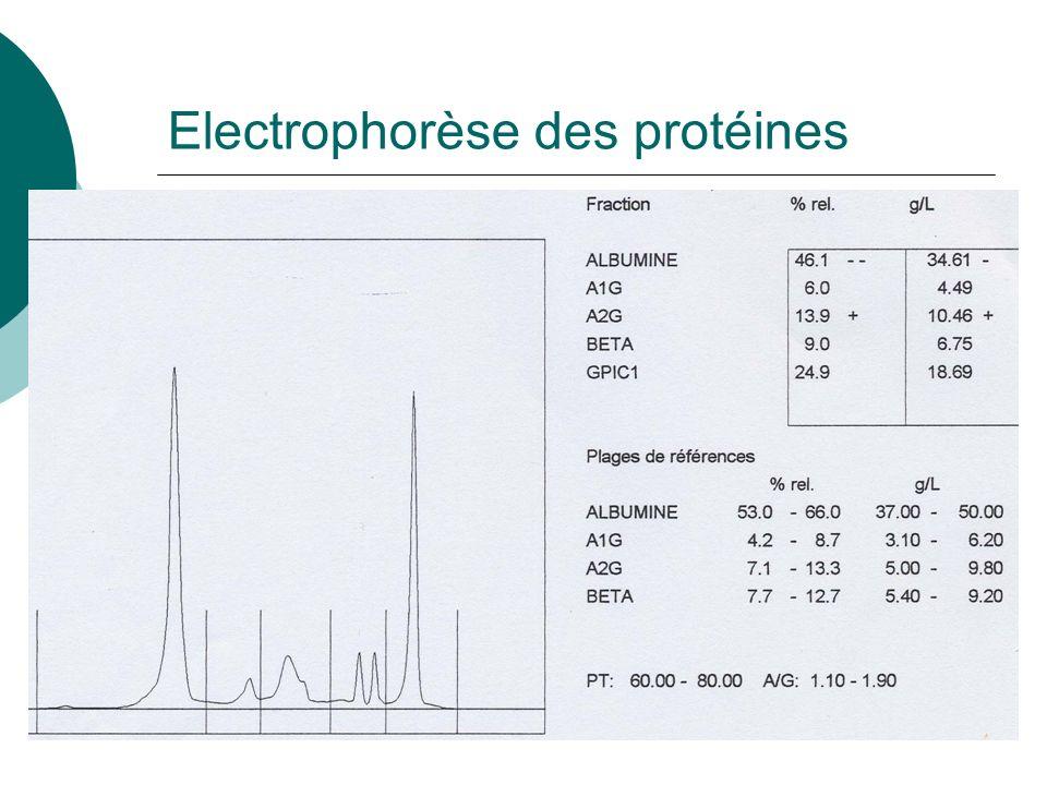 Electrophorèse des protéines