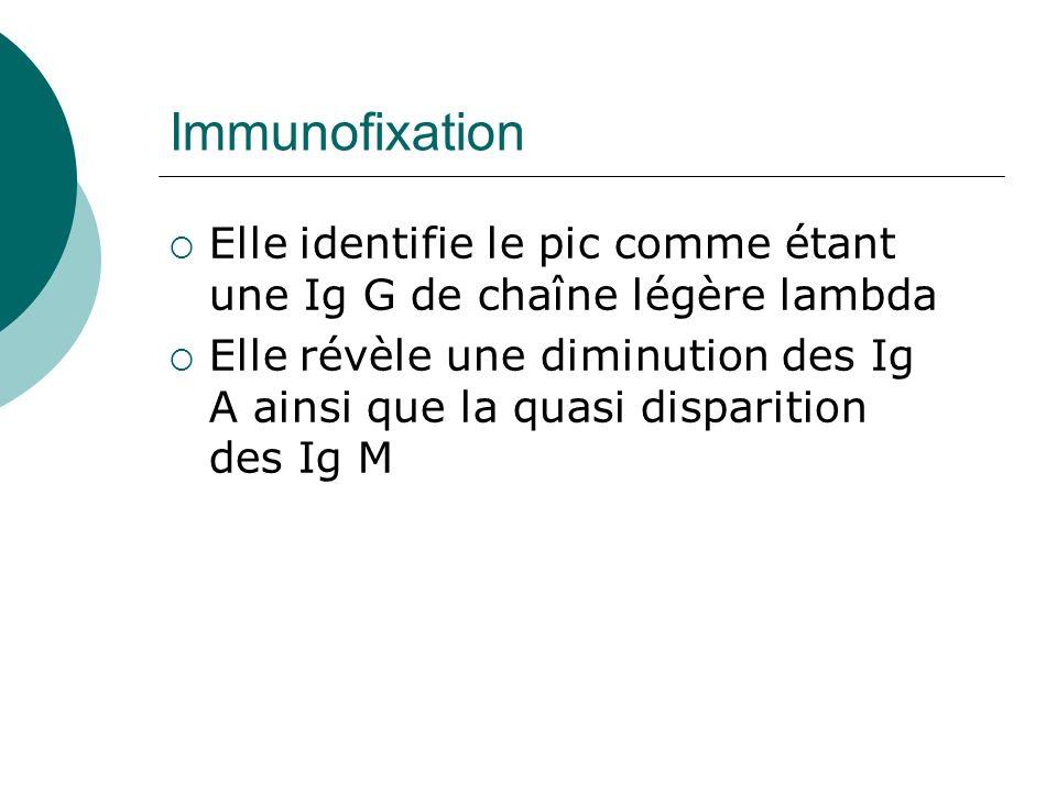 Immunofixation Elle identifie le pic comme étant une Ig G de chaîne légère lambda.