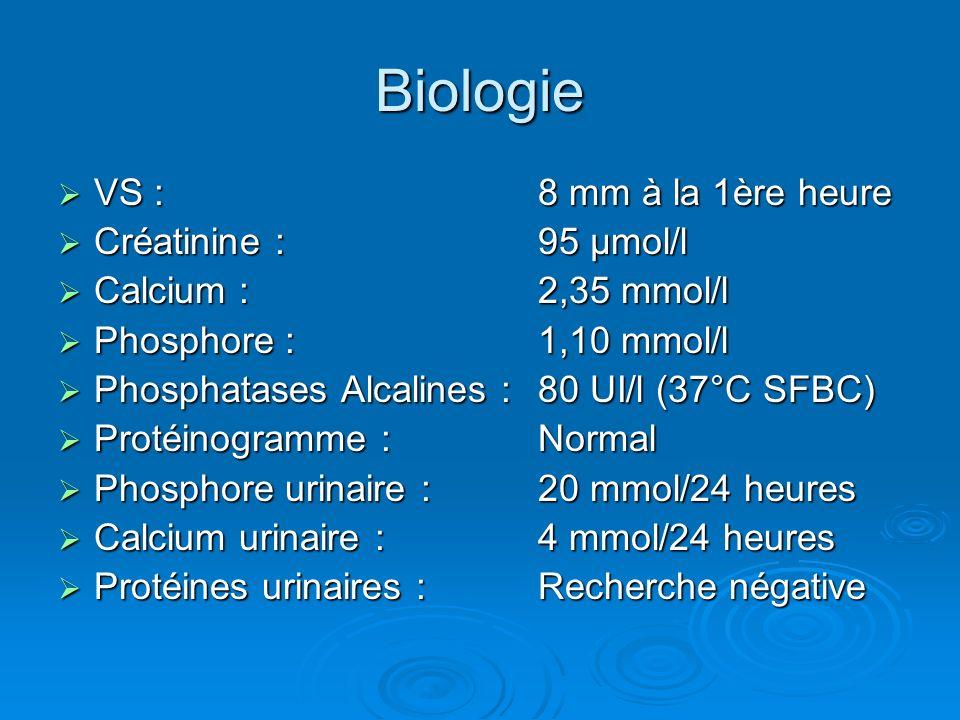 Biologie VS : 8 mm à la 1ère heure Créatinine : 95 µmol/l