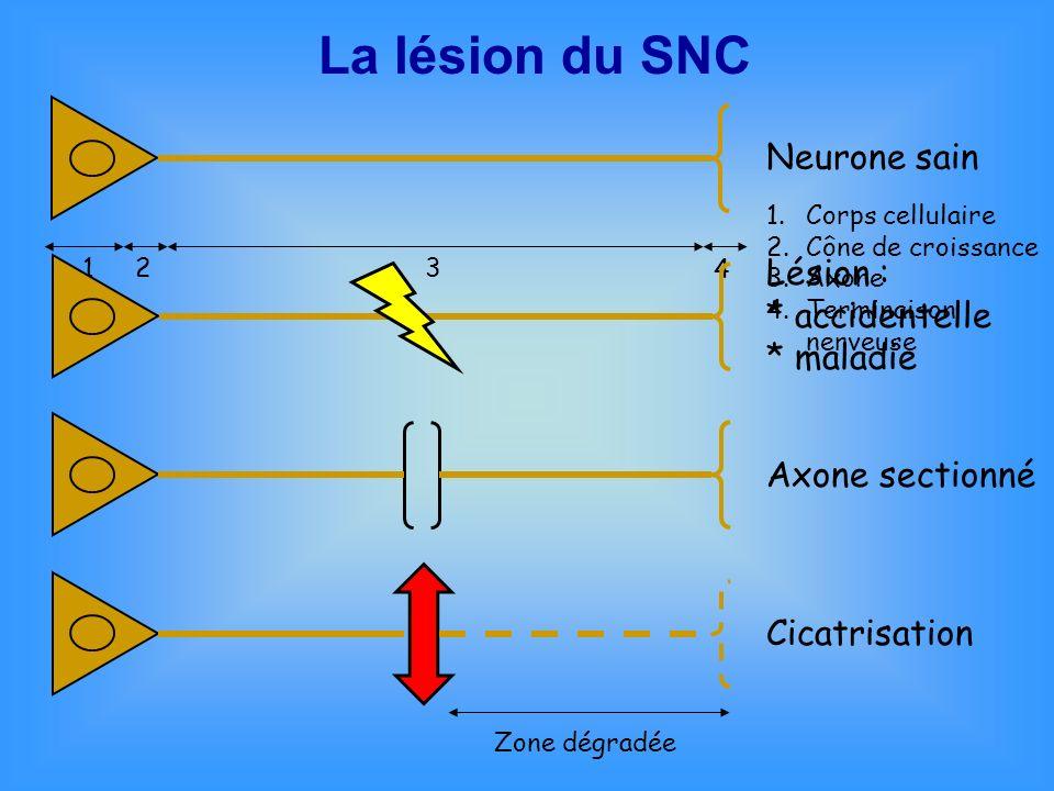 La lésion du SNC Neurone sain Lésion : * accidentelle * maladie