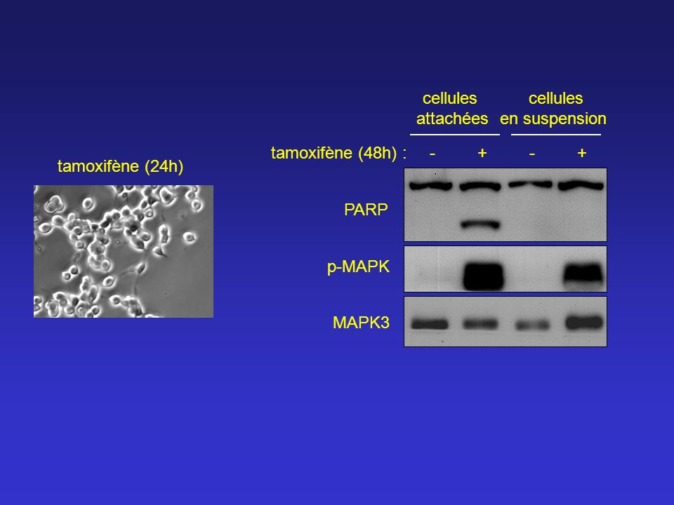 cellulesattachées. cellules. en suspension. tamoxifène (48h) : - + - + tamoxifène (24h)