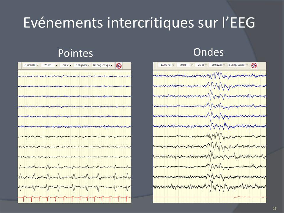 Evénements intercritiques sur l'EEG