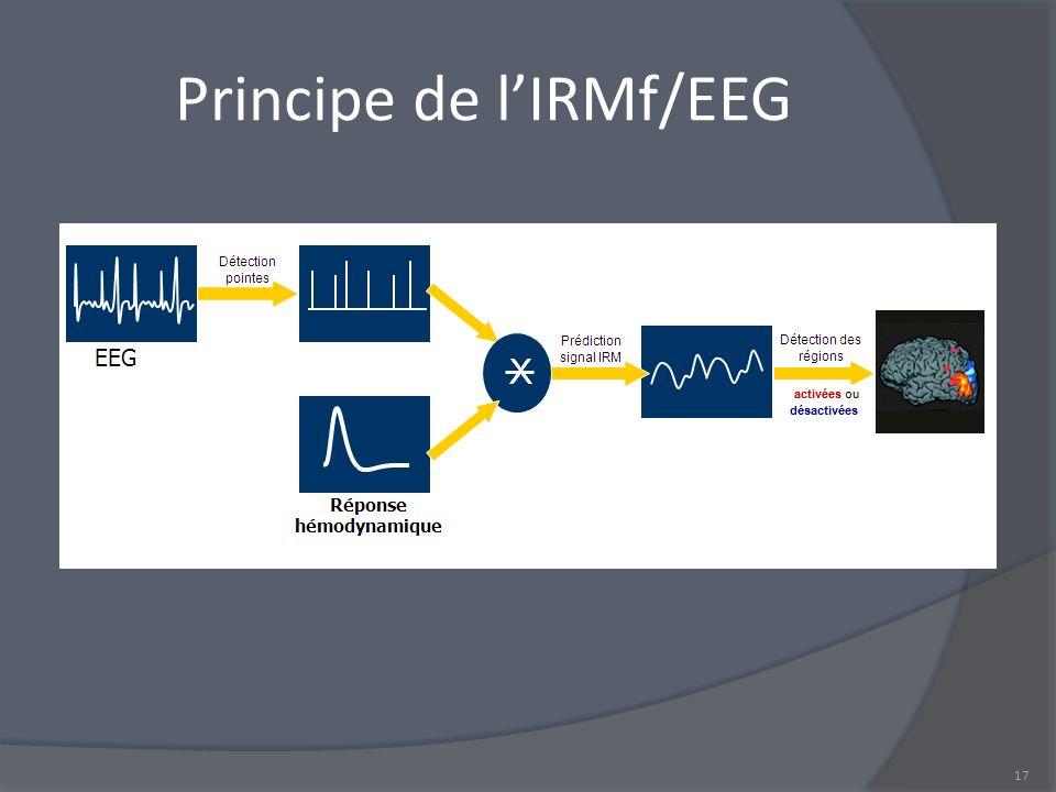 Principe de l'IRMf/EEG