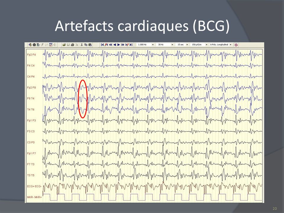 Artefacts cardiaques (BCG)