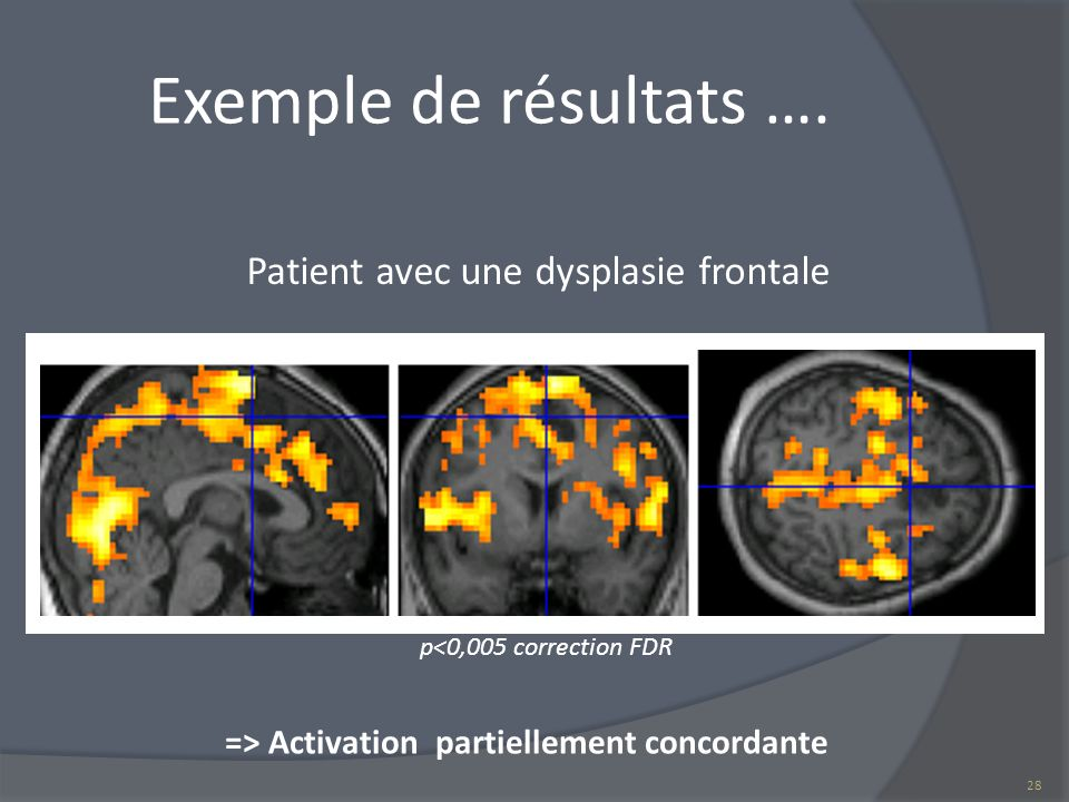 => Activation partiellement concordante