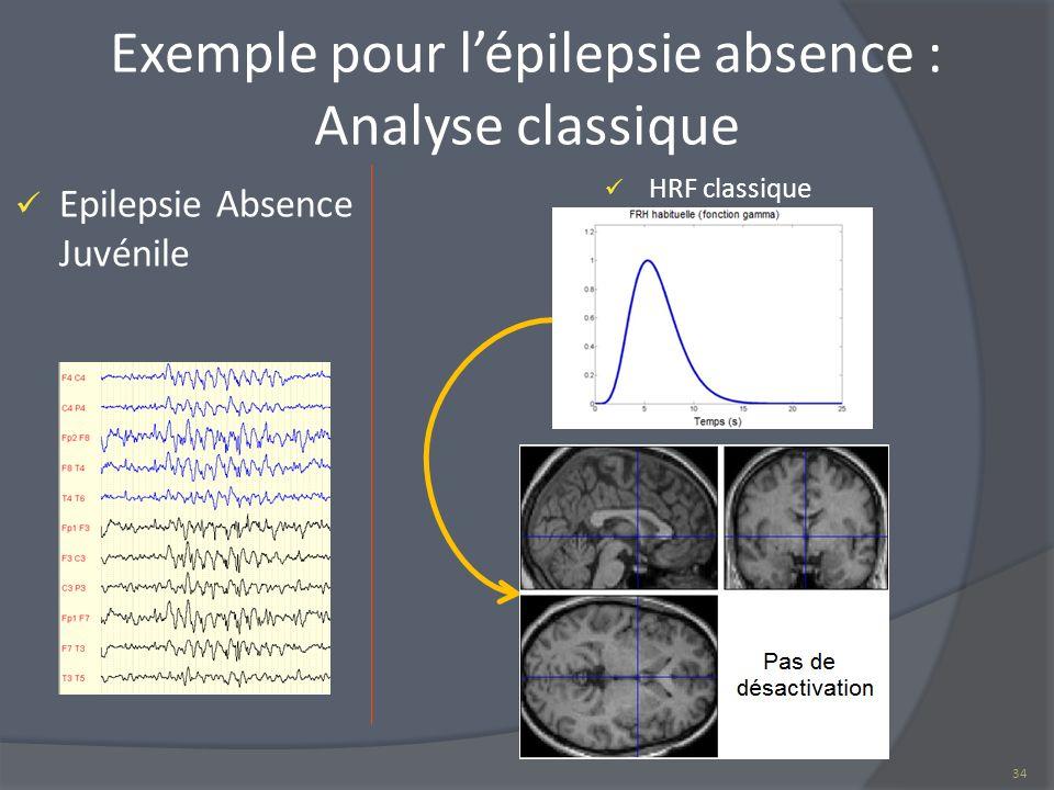Exemple pour l'épilepsie absence : Analyse classique