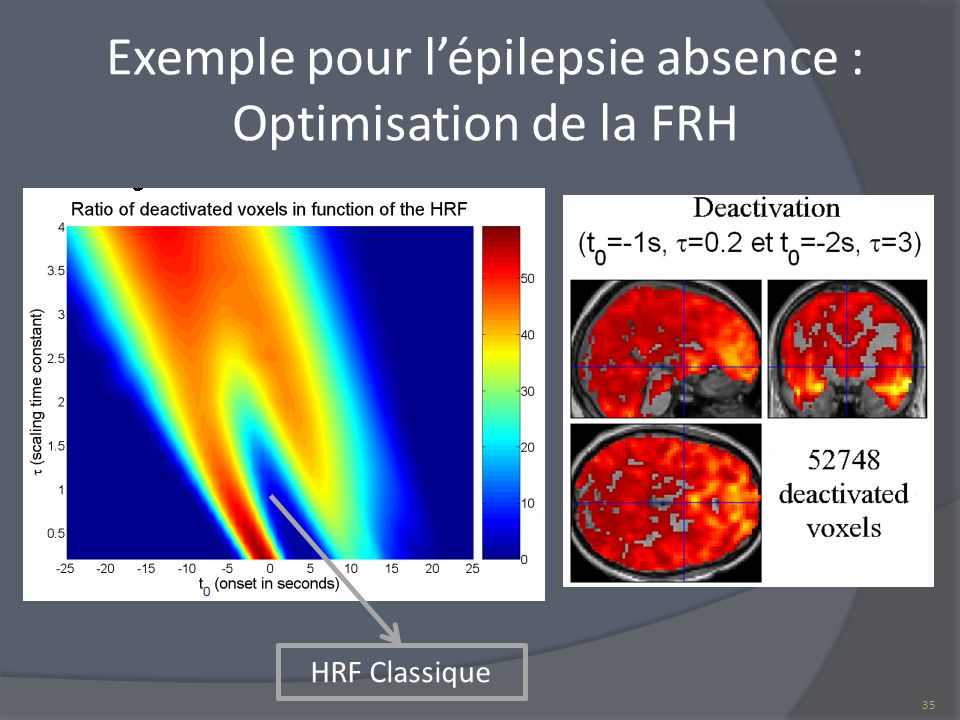Exemple pour l'épilepsie absence : Optimisation de la FRH
