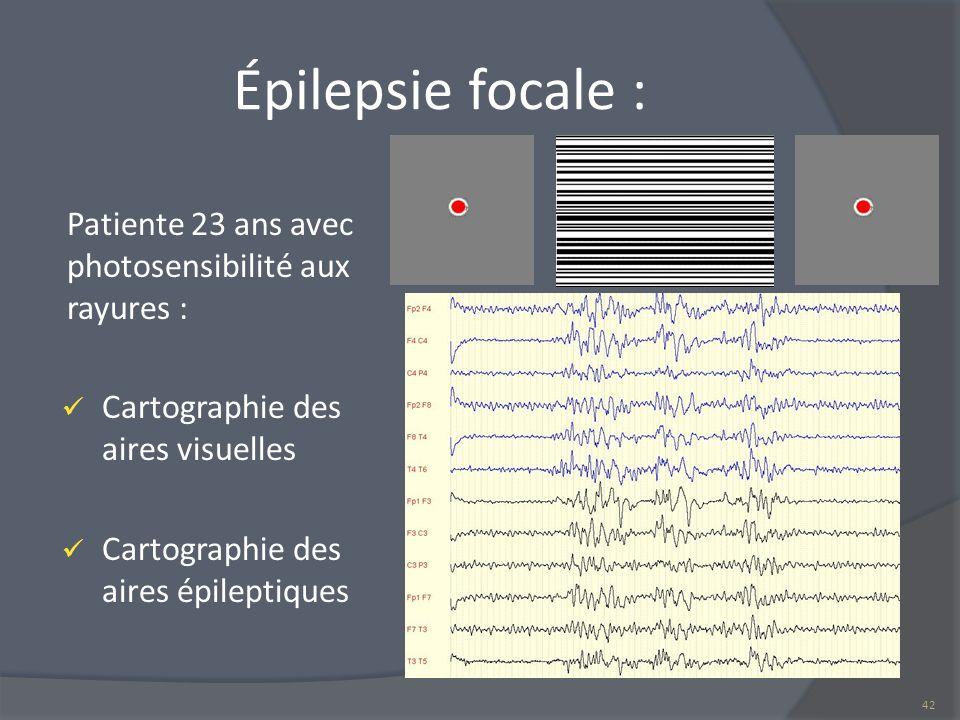 Épilepsie focale : Patiente 23 ans avec photosensibilité aux rayures :