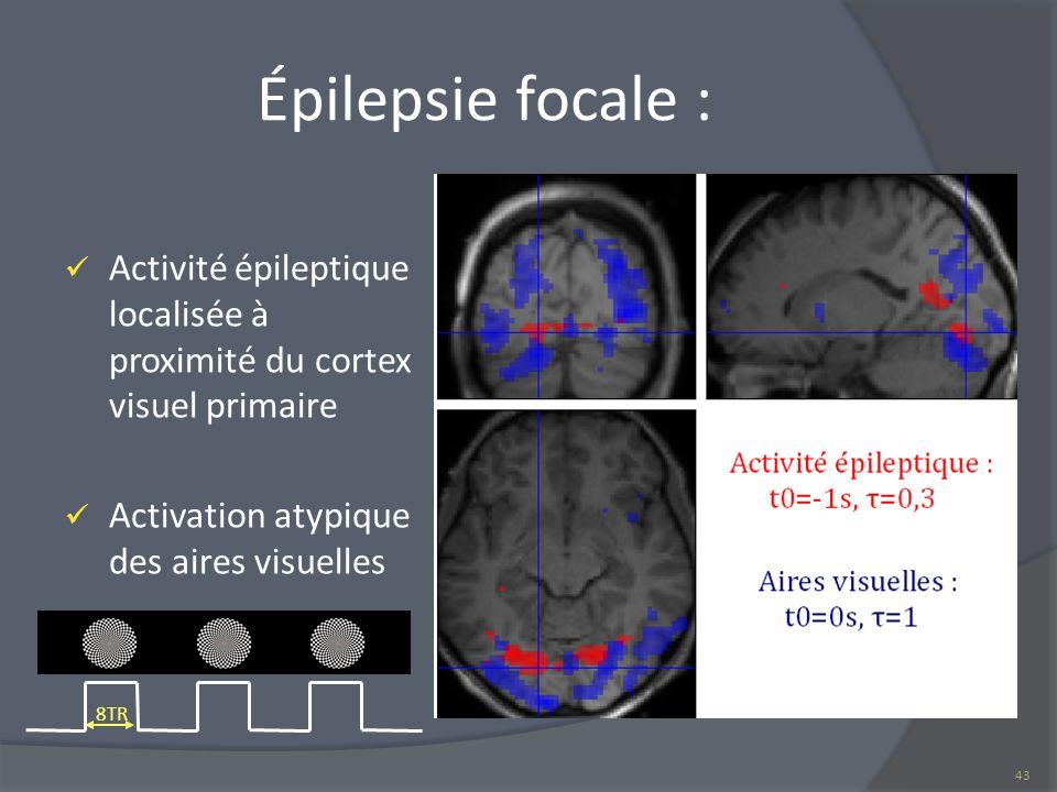 Épilepsie focale : Activité épileptique localisée à proximité du cortex visuel primaire. Activation atypique des aires visuelles.