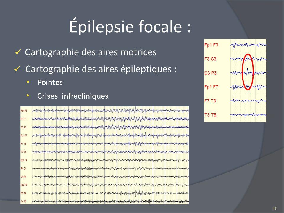 Épilepsie focale : Cartographie des aires motrices