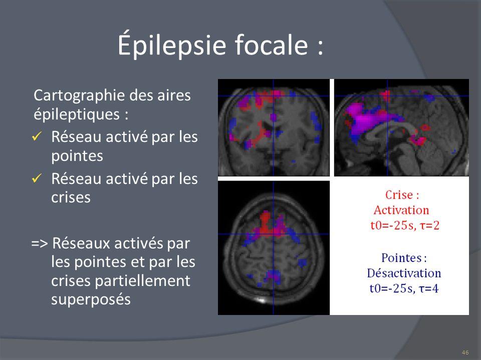 Épilepsie focale : Cartographie des aires épileptiques :