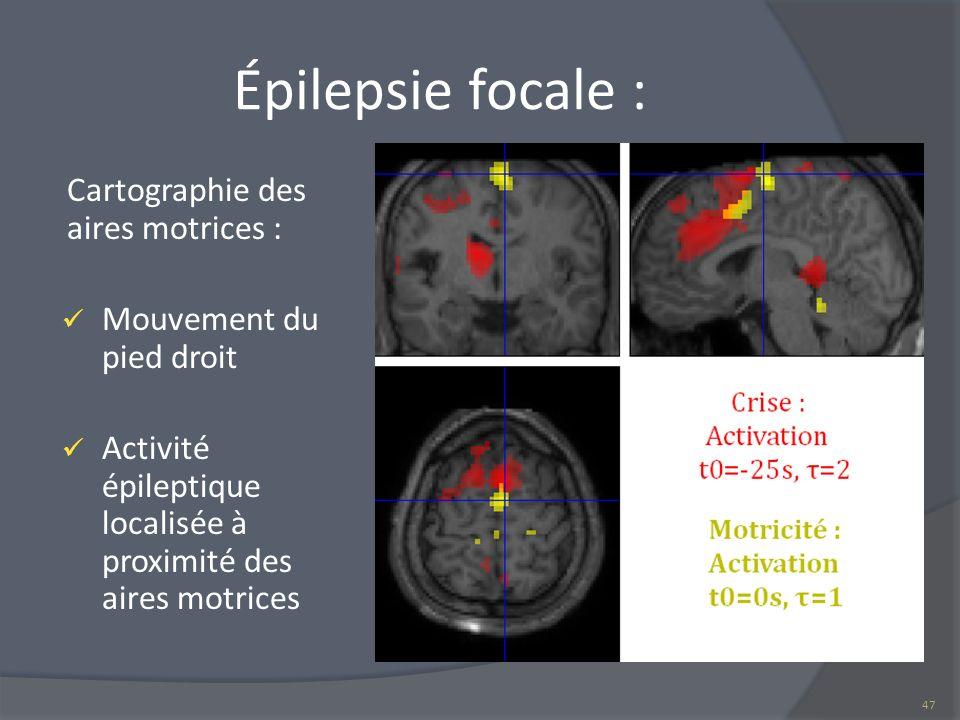 Épilepsie focale : Cartographie des aires motrices :