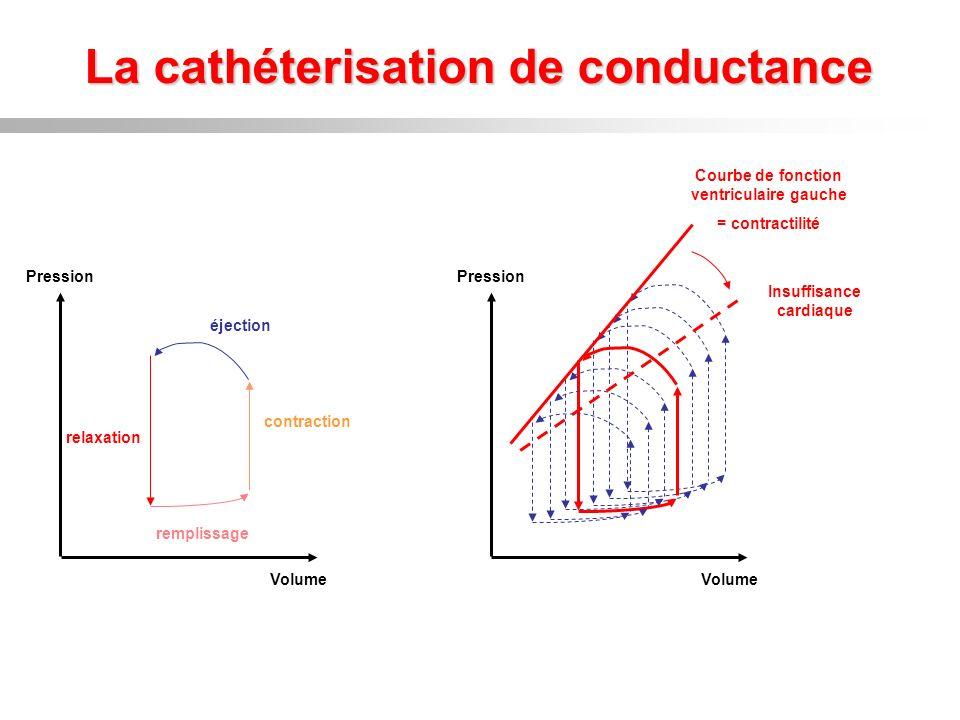 La cathéterisation de conductance