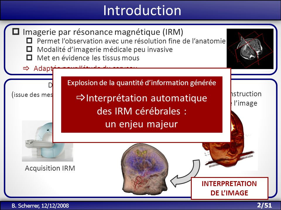 Introduction Interprétation automatique des IRM cérébrales :